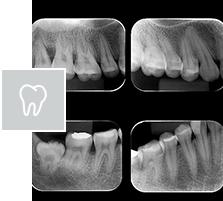 Levantamento periapical dos arcos dentários (14 radiografias periapicais)