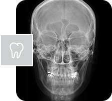 Telerradiografia frontal