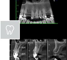 Radiografias Extrabucais
