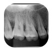 Levantamento periapical dos arcos dentários